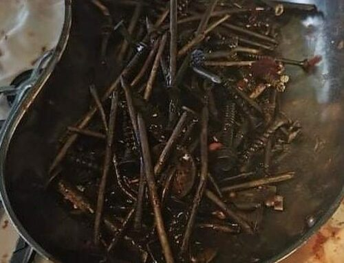 Doctors find 1kg of nuts and bolts in man's stomach